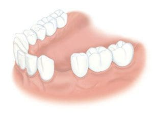 tooth-loss[1]